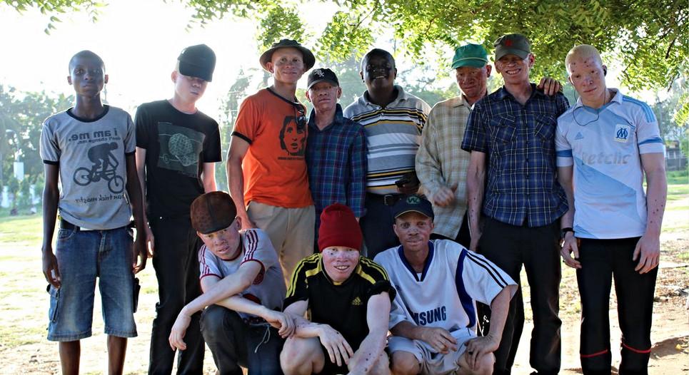 albino united 3