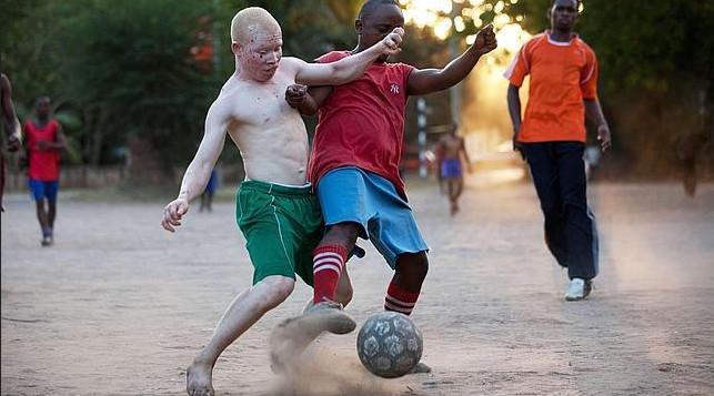 albino united 4