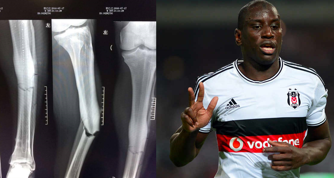 demba Da injury